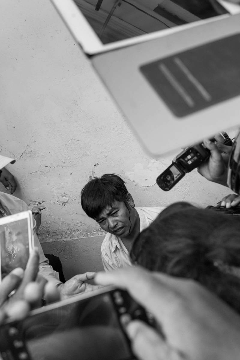 Pheng Leng, 46, after being beaten over the head by Daun Penh district security guards on Monday. Mr. Leng joined dozens of supporters of independent radio station owner Mam Sonando in a protest calling for a TV station and stronger radio frequency. (John Vink)