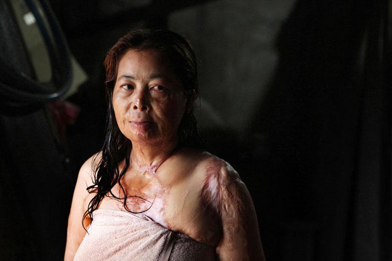 Chantheoun, 40, was attacked with acid in Phnom Penh in 1997. (Ann-Christine Woehrl)